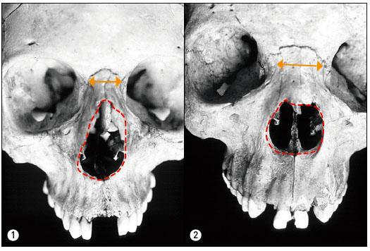 유럽계(①)와 아프리카계(②)의 머리뼈. 좌측의 콧구멍은 물방울 모양에 가깝지만 우측은 원에 가까운 모양이다(빨강). 코뼈의 너비는 유럽계보다 아프리카계가 넓다(주황).