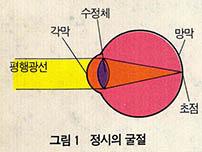 시력이상과 교정의 요령 굴절이상은 정확한 안경처방이 필수적