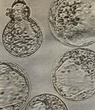 활발한 기술투자와 연구 한국의 유전자 산업