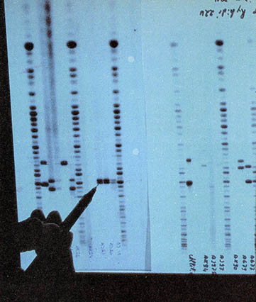 인간은 수명 결정하는 유전자 지니고 있나