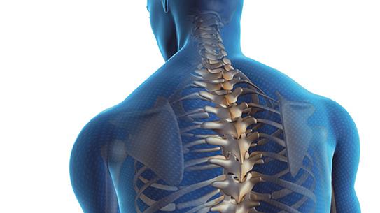 한방과 양방으로 다스리는 척추측만증
