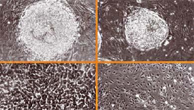 1981년 마틴 에번스 교수의 생쥐 배아줄기세포 확립