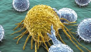 면역세포로 암세포 '킬러' 만든다