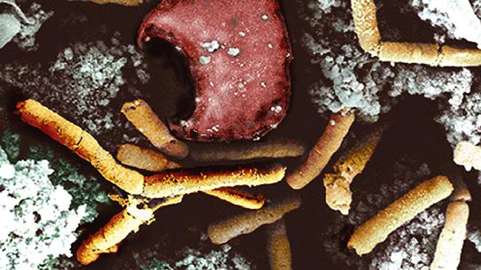 [과학뉴스] 생물학 무기 탄저균