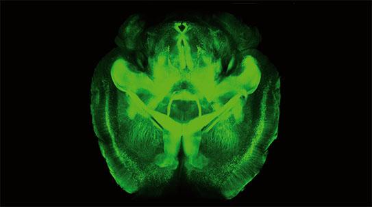 PART1. 뇌 조종의 신기원을 열다