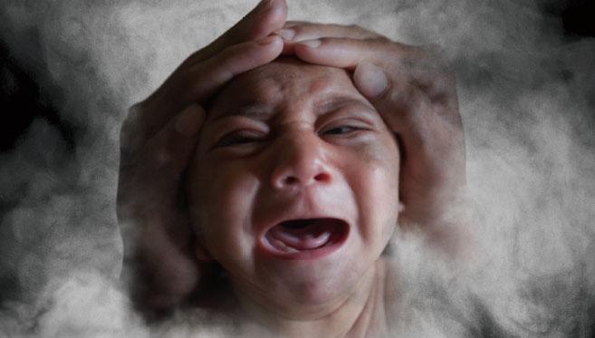 [News & Issue] 소두증, 지카바이러스 단독범행일까