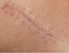[과학뉴스] 지방세포로 흉터 없이 상처 치료