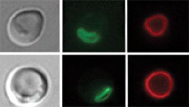 [과학뉴스] 세포가 물질 이동시키는 새로운 경로 발견