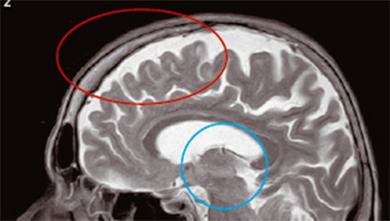Part 5. 지금도 자라는 사춘기 뇌