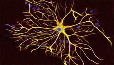 [과학뉴스] 별세포 활성 떨어지면 운동 능력은 향상