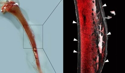 [과학뉴스] 뼈 속에 혈관 있다?