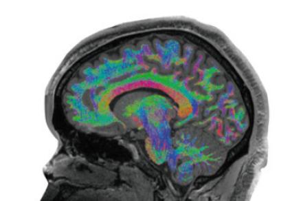 [프리미엄] '엑스맨' 다크 피닉스처럼 뇌를 조종하려면?