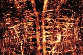 [과학뉴스] 신경 꿰뚫어 보는 홀로그램 현미경