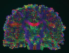 인공지능은 인간지능을 넘어섰다