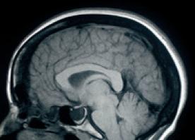 잠들면 뇌에서 무슨 일이